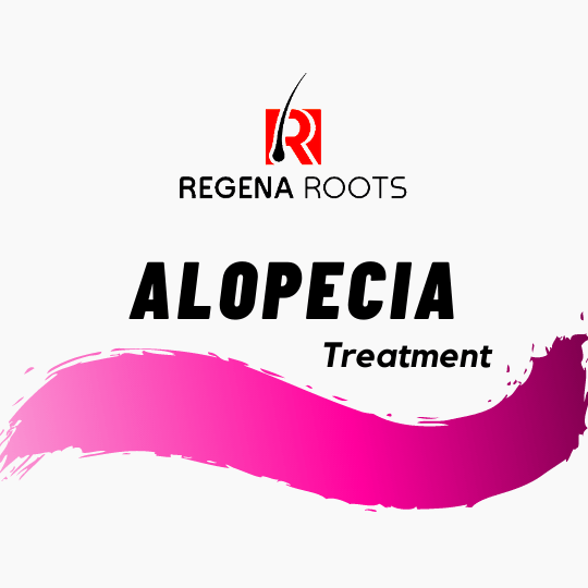 Natural Cure for Alopecia