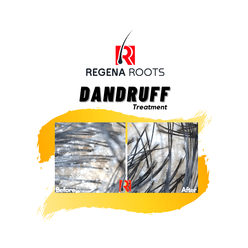 Regena Roots Antidandruff Results