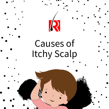 Itchy scalp reasons
