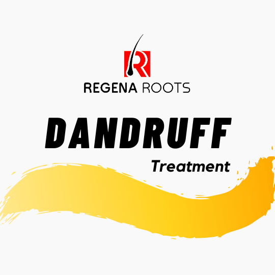 Natural Anti dandruff treatment